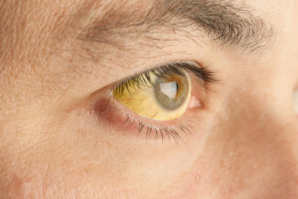 Mata menjadi kuning merupakan salah satu gejala penyakit Hepatitis A - Rumah123.com