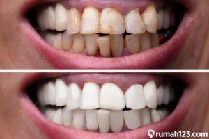 7 Cara Mudah Memutihkan Gigi Secara Alami dan Cepat di Rumah, Murah dan Aman!
