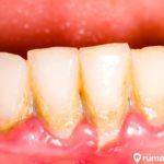 6 Cara Menghilangkan Karang Gigi Secara Alami di Rumah