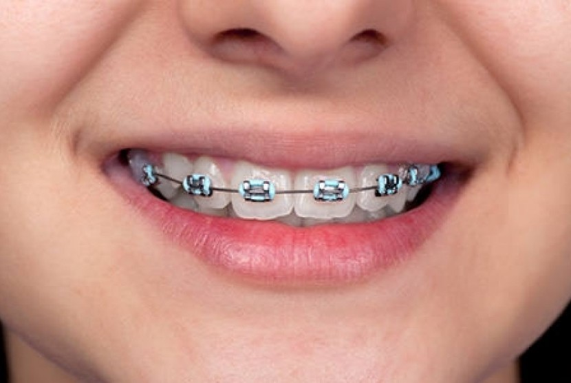 kawat gigi permanen