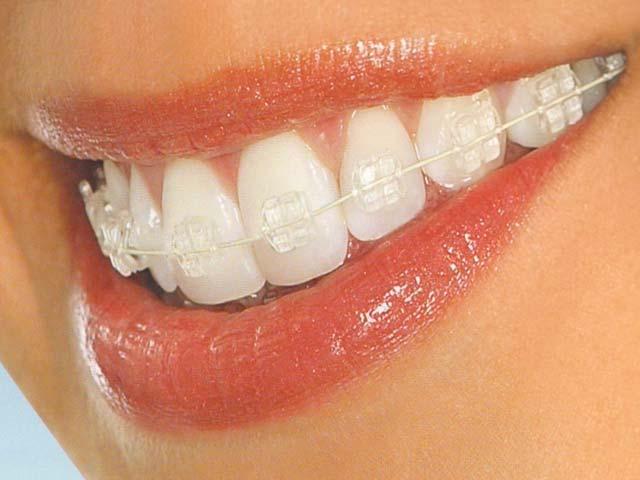 kawat gigi Invisible