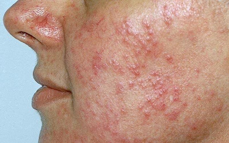 penyakit rosacea